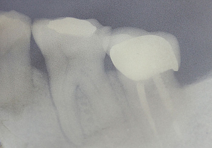 X-Ray of tooth demonstrating lesion around mesial root